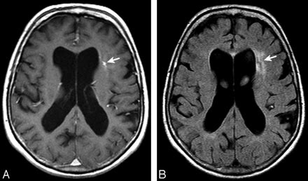 Brain Parenchymal Signal Abnormalities Associated with