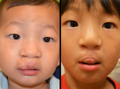 Cleft Lip Revision | The Cleft Palate and Craniofacial Ins