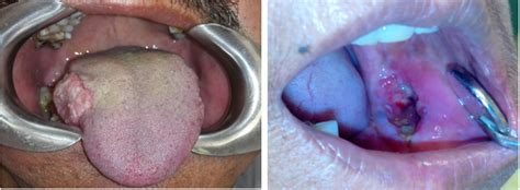 A Study of 89 Cases of Oral Squamous Cell Carcinoma