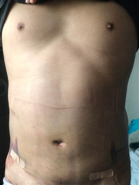 Things you should know about Liposuction Surgery | OnlyWilliam