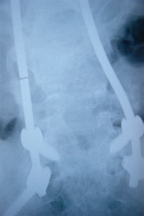 Pin on Traditional Scoliosis Treatments