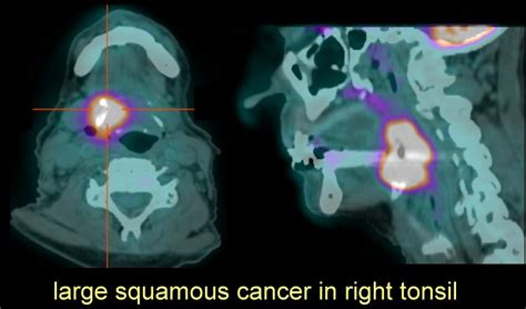 PET and CT Scans