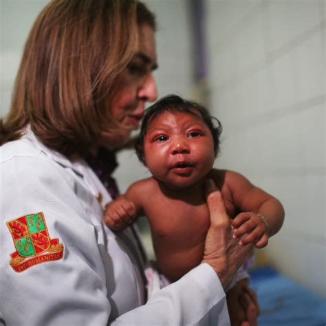 What you should know about the birth defect tied to Zika